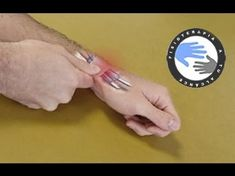 K Tape, Hand Therapy, Hand Wrist, Yoga Bag, Physical Therapist, Chiropractic, Natural Medicine, Healthy Tips, Beauty Care
