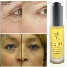 Before and after UPLIFT eye serum! Can't deny these results! Get yours today. Money back guarantee! www.live-beautifully.org
