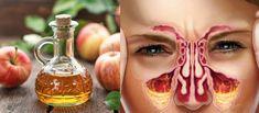 Dr Web, Diabetes, Halloween Face Makeup, Animal, Protect Your Heart, Paranasal Sinuses, Warts, Sodium Bicarbonate, Cholesterol