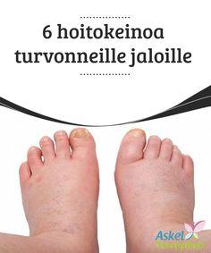 6 hoitokeinoa turvonneille jaloille   Usein turvotus nilkoissa, #jalkaterissä ja säärissä johtuunesteen #kertymisestä#elimistöön.  #Luontaishoidot
