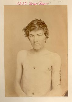 Gunshot wound of left arm resulting in excision. Edwin M. Bostwick, 2nd New York Cavalry. Petersburg, VA, 1 April 1865.