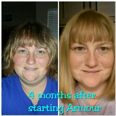Swelling and puffiness has gone down and feeling so much better after only 4 months on armour. I was diagnosed in april 2001 and have been on all the synthetic hormones but never felt good. Finally found a doctor that would listen to me and not just my test results. | Thyroid Sexy |