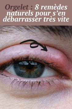 Eye Treatment, Healthy Tips, Physique, Eyes, Health, Beauty, Hair, Natural Treatments, Natural Remedies