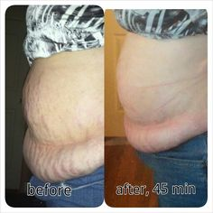 Have YOU tried that Crazy Wrap? Tightens, tones, and firms the skin in 45 min.