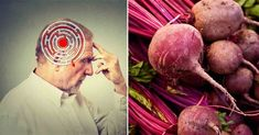 Research suggests beets may help prevent Alzheimer's disease, decreasing damaging oxidation of neurons by as much as 90 percent; beets also fight inflammation, help you detoxify, improve brain neuroplasticity and Alzheimer's Prevention, Neuroplasticity, Heath And Fitness, Alzheimer's And Dementia, Brain Health, Healthy Brain, Cancer Cure, Alternative Health, Health Articles