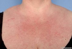 Dermatomyositis is a rare, multisystem disorder mainly affecting the skin…