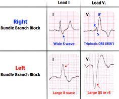 Right Bundle Branch Block vs. Left Bundle Branch Block Rosh Review