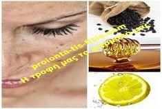 Πώς σταφίδες, λεμόνι και μέλι θα... εξαφανίσουν τις πανάδες σας! Οι σπιτικές συνταγές μπορούν να κάνουν θαύματα. Δοκιμάστε αυτή τη θεραπευτική μάσκα Beauty Recipe, Healthy, Yoga, Google, Tips, Recipes, Health And Beauty, Ripped Recipes