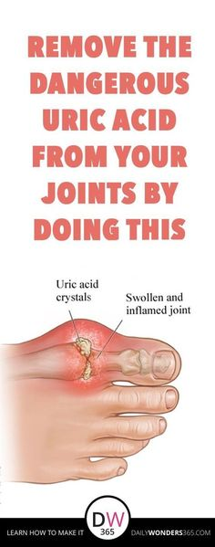 REMOVE THE DANGEROUS URIC ACID FROM YOUR JOINTS BY DOING THIS