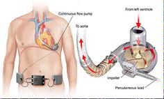 Image of HeartWare Ventricular Assist System