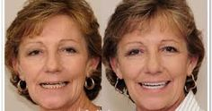 http://www.faceliftdentistry.com  The non-invasive Under Bite Correction is a risk free and painless procedure to get yourself a beautiful smile.  The procedure that won't intrude inside your mouth. #noninvasiveUnderBiteCorrection