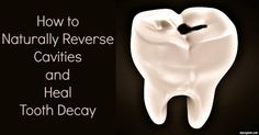 Check out how to take a holistic approach to healing and reversing cavities and tooth decay.