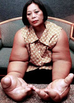 Oversized hands and arms, caused by a hormone imbalance.