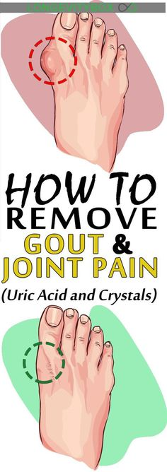 Gout is a type of arthritis, which occurs as a result of the accumulation of