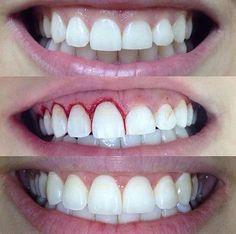 Best Dental - Family and Cosmetic Dentist in Richmond, TX in 77407 Veneers Teeth, Dental Veneers, Dental Braces, Dental Implants, Dental Care, Dental Videos, Perfect Teeth, Dental Cosmetics, Dental Procedures