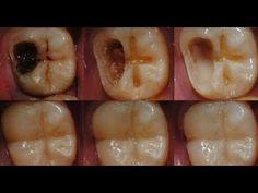 Ningún dentista quiere que sepas sobre este remedio - Te quita la caries sin dolor! - YouTube