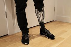 EXO prosthetic leg by William Root.