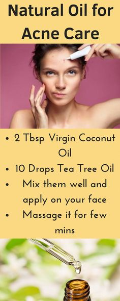 DIY all natural face oil for oily and acne prone skin : Get rid of pimples and acne at home without using chemical Get Rid Of Warts, How To Get Rid Of Pimples, Remove Warts, Warts On Hands, Warts On Face, Natural Face, Natural Oils, What Causes Warts, Anti Aging