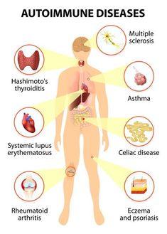 What Causes Diabetes, Diabetes Facts, Thyroid Health, Autoimmune Disease, Disease Symptoms, Autoimmune Paleo, Thyroid Symptoms, Thyroid Cancer, Thyroid Disease