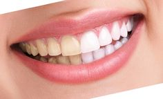 Teeth color is one of the many things that can affect anyone's overall appearance. People in our modern times see white teeth as ideal and a sign of good health. A smile becomes brighter if the teeth are outstandingly white. Since naturally maintained teeth can be stained easily through a person's diet and lifestyle, the number of cases needing dental bleaching is always high.