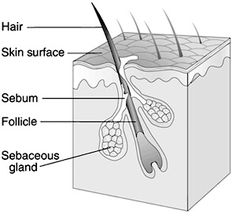What is ingrown hair? Ingrown hair is a condition where the hair grows sideways into the skin. The condition is widespread in people who have curly or coarse hair. DIY Home Remedy For Ingrown Hair. Eye Stye Remedies, Ingrown Hair Remedies, Pimples Remedies, Dry Skin Remedies, Home Remedies For Hair, Holistic Remedies, Herbal Remedies, Treat Ingrown Hair, Ingrown Hairs