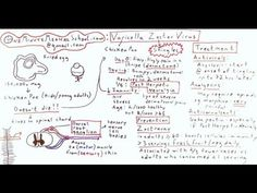 Shingles and Chicken Pox: Varicella Zoster Virus - One Minute Medical School - YouTube
