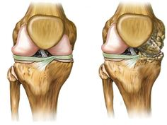 Los mejores consejos y remedios naturales para la regeneración del cartílago en caderas y rodillas