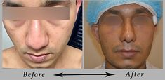 Rhinoplasty – 7 Days Result – 2018 - Broad Nose, Nasal Hump, Big Nose (Feedback) Rhinoplasty – 7 days result – broad nose, nasal hump, big nose – all corrected in one go. Patient feedback in 7 days. Medical travel - patient travel from Germany to India to get best nose surgery done from Dr Monisha kapoor. For more information visit: https://www.plasticsurgeonmonisha.com/face/nose/ or call us - 011- 40666307 / 08
