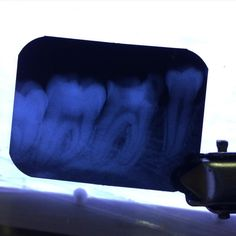 Es Viernes y los pacientes lo saben  haahha seguimos trabajando #rx #dentistry #dentist by noe_vzqz Our General Dentistry Page: http://www.myimagedental.com/services/general-dentistry/ Google My Business: https://plus.google.com/ImageDentalStockton/about Our Yelp Page: http://www.yelp.com/biz/image-dental-stockton-3 Our Facebook Page: https://www.facebook.com/MyImageDental Image Dental 3453 Brookside Road Suite A Stockton CA 95219 (209) 955-1500 Mon - Fri: 8am - 5pm myimagedental@gmail.com