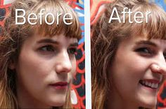 These People Got Facial Piercings And It Looked Painful AF