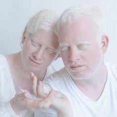 belleza albinismo