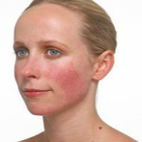 Acne rosacea natural treatment rosacea symptoms in toddlers,best anti aging face moisturizer best proven anti aging products,skin product lines rosacea face treatment. Ocular Rosacea, Acne Rosacea, Red Pimples, Home Remedies For Rosacea, Acne Remedies, Natural Remedies, Homeopathic Remedies, Beauty Tips