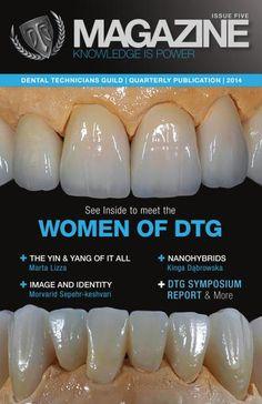 My Library – Dental Technicians Guild Dental Art, Dental Teeth, Dental Technician, Teeth Shape, Dental Veneers, Dental Laboratory, Dental Procedures, Receding Gums, Bad Breath