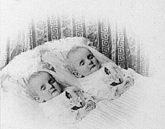 Conjoined Twins Post-Mortem | Early Post Mortem Photography: Dead Twins