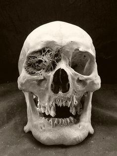 Skull Positron