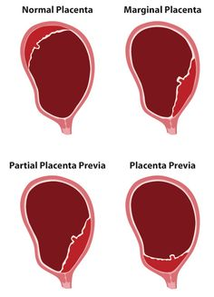 Placenta Previa. Painless, bright red bleeding, usually after 28 weeks or at onset of birth