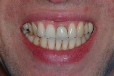 An example of cosmetic dentistry to help this man with the dark edge to the front tooth crown, this is the before photo more here s10dental.co.uk/treatments/dental_crowns_sheffield.html     FOR $5 I can save you Money,and give you an exact Quote  on your Dental work free to visit  if I can Help Research Your Dentist & Plans in your area http://fiverr.com/nytoothdr/answer-any-dental-question-on-treatment-options-and-costs-as-well-as