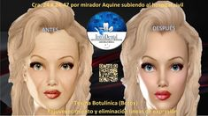 Toxina botulínica tipo A - (Botox) Medicine, Botulinum Toxin, Myasthenia Gravis, Under Eye Wrinkles, Being Healthy, Ageing, Faces