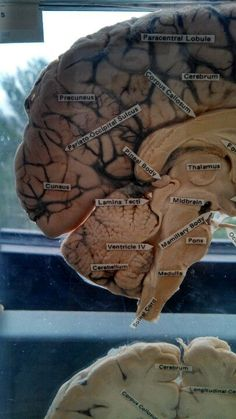 Anatomy of the human brain Medical Students, Nursing Students, Medical School, Human Anatomy And Physiology, Human Brain Anatomy, College Nursing, Neurone, Medical Anatomy, Med Student