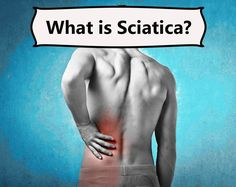 Sciatica has become a bit of a buzz word among my patients when they speak about lower back pain. They use it for anything from localised pain in their lower backs to pain down their legs. But what is sciatica and why is it called that? Sciatica Massage, Sciatica Symptoms, Sciatica Pain Relief, Sciatica Exercises, Back Pain Relief, Sciatic Nerve Injury, Sciatic Pain