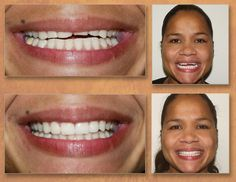 look what cosmetic dentistry can do! Dental Videos, Dental Problems, Rhinoplasty, Cosmetic Dentistry, Cosmetics, Education, Dentistry, Onderwijs, Learning