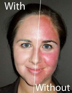 If you think that you have rosacea, or general face-redness, then these natural home remedies should be able to help. Red Face Remedies, Home Remedies For Face, Rosacea Remedies, Face Mask For Redness, Face Skin, Face And Body, Beauty Secrets, Beauty Hacks, Beauty Tips