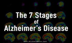Every person with Alzheimer's disease experiences the disease differently, but patients tend to experience a similar trajectory from the beginning of the illness to its merciful end. The precise nu…