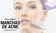 Como aclarar las manchas de acné