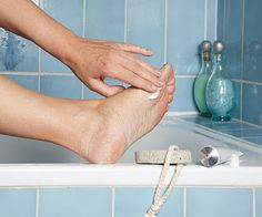Cracked heel relief