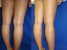 How to eliminate the varicose veins forever! - Healt World Arnica Montana, Low Heel Shoes, Low Heels, Varicose Veins Causes, Maria Schneider, Envy Me, Marianne, Leg Pain, Stars Then And Now