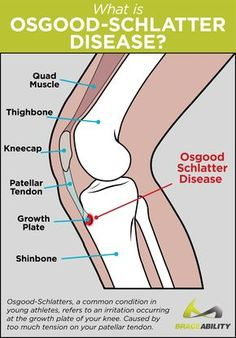 Osgood-Schlatter disease is characterized by a painful bump located below your kneecap. Learn about treatments, exercises, & surgery for adults and kids. Patellar Tendonitis Exercises, Knee Tendonitis, Knee Ligaments, Osgood Schlatter Disease, My Knee Hurts, Quad Muscles, Pediatric Nurse Practitioner, Knee Problem, Knee Pain Relief