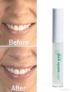 Smile Pop Lip Gloss - Illuminating pearls that make teeth appear whiter Smile Whitening, Aloe On Face, Ap 24, Perfect Lips, Face Facial, Moisturizer With Spf, Lip Plumper, Beauty Hacks Video, Anti Aging Skin Care