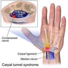 Everyday pain management ideas: Surgery or Physical Therapy? Carpal Tunnel Syndrome Pain 6 and 12 Months After Treatment Carpal Tunnel Surgery, Carpal Tunnel Relief, Pain Relief, Wrist Pain, Wrist Brace, Carpel Tunnel Syndrome, Median Nerve, Massage Therapy, Back Pain