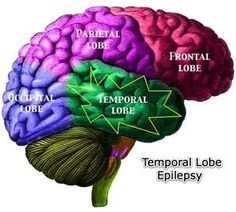 Epilepsy locations in the brain. (article on Temporal lobe & surgery)